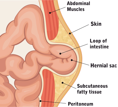 Hernia Surgery – Surgical Associates of Mansfield